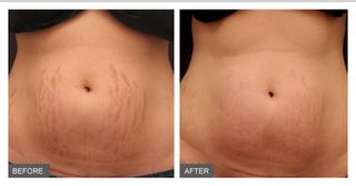 Micro-Needling-stretch-marks