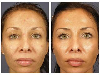 Skin-Care_VI-Peel_Before-After-Photo