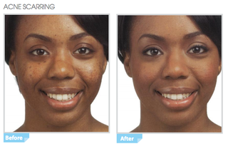 Lycogel-Breathable-Camouflage-Concealer-Acne-Scars-Before-After