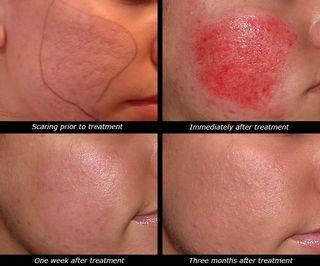 Skin-needling-2