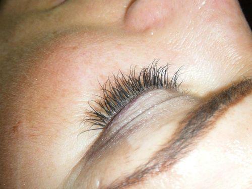 Eye (8)
